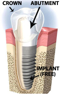 Free Dental implants| How and Where do I find free dental Implants?,  Dental   insurance coverage question for getting dental implants in chicago. I'm in Queens