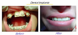 Dental Implants in titanium