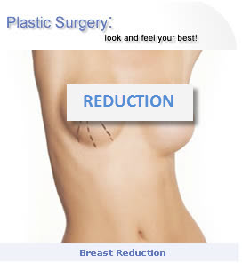 Breast reduction, large breast issues